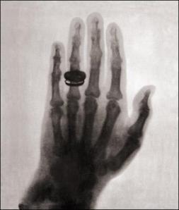 X-Ray image of hand, Wilhelm Konrad Roentgen