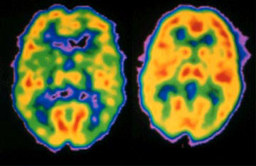 PET scans of a schizophrenia sufferer's brain (left) and normal brain (right).